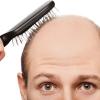 男性の薄毛・抜け毛にはヘッドスパ・マッサージ