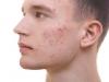 ヒゲ剃りとニキビの関係性について