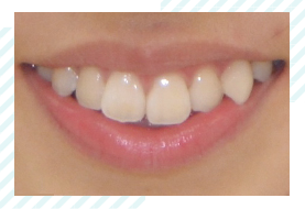 八重歯って可愛い?