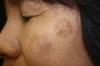 顔のシミが目立つ・・・そんな時に試したいシミ消し民間療法