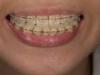 西宮の矯正歯科なら